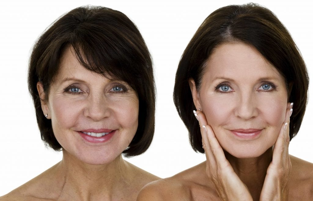 before and after cosmetic procedures